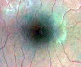 macula-close-up2