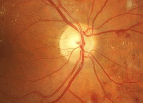 advanced diabetic retinopathy patient retains good vision in need of Tx