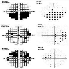 visual-field-test1